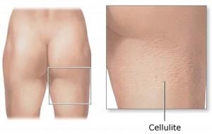 cellulite-2