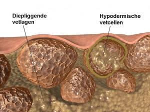 cellulitis_nl_text